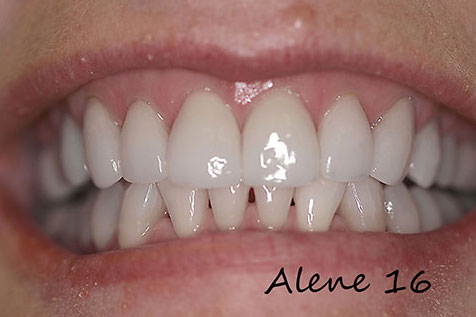 Dental Veneers Services - Gallery