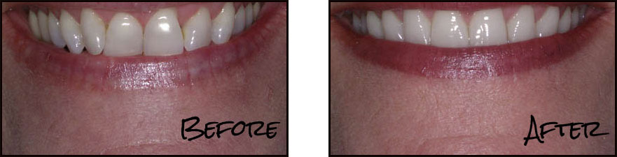 Dental Studio 101 - Cosmetic Dental Before and After