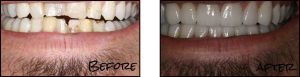 Dental Studio 101 - Before and After