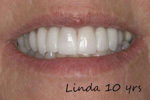 Linda 10yrs