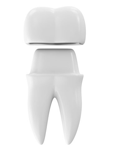 Dental Crowns Scottsdale