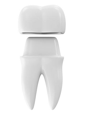 Dental Crowns Scottsdale