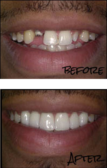 Dental Implants Scottsdale