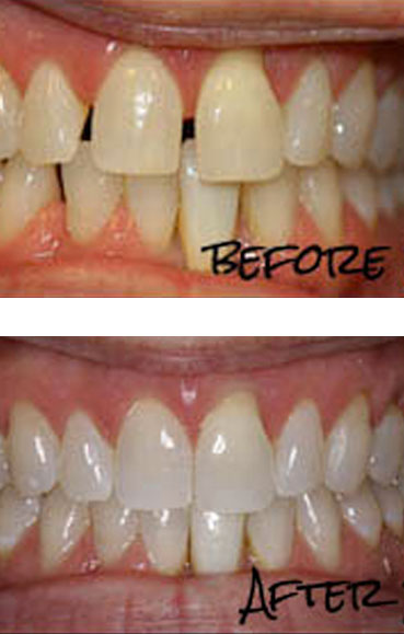 Invisalign Clear Braces Scottsdale